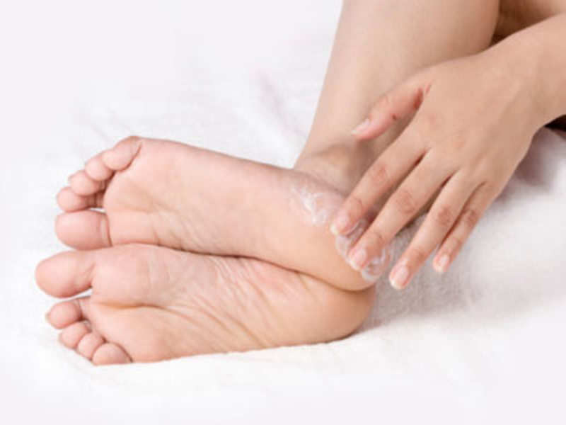 How to prevent dry cracked feet and heels